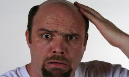 Erkekler saçlarını neden kaybediyor?